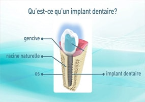 implant dentaire a Gagny